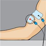 Placement electrode compex bras et biceps