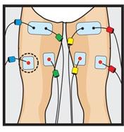 Placement electrode compex ischio jambier ischios