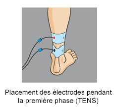 Placement electrode compex talon achille