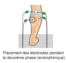 Placement electrode compex mollets