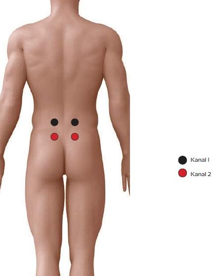 Chronische Lumbalgie