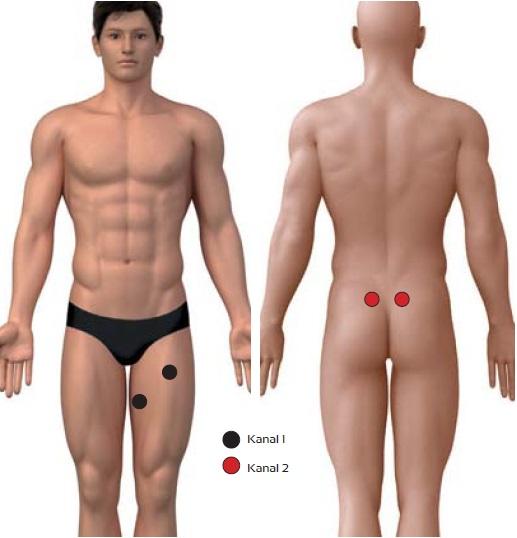Chronische Lumbofemoralgie