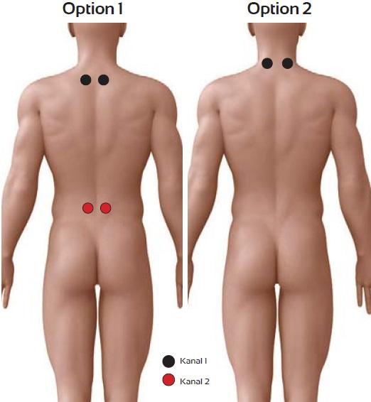 Fibromyalgie und myofasziale Schmerzen